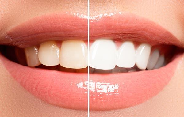 Blanqueamiento dental Benicàssim