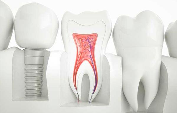 Endodoncias en Benicàssim