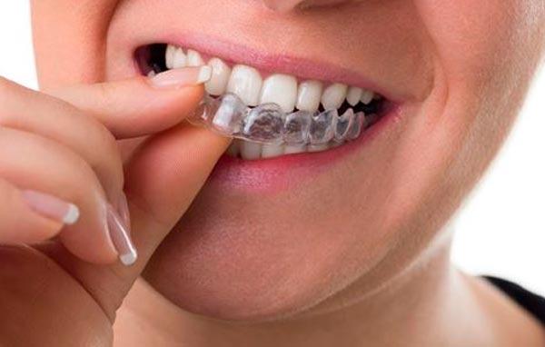 Ortodoncia en Benicàssim