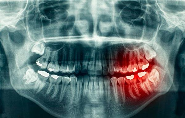 Radiografías bucales en Benicàssim